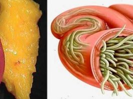 Просто используйте эти 2 ингредиента чтобы освободить все залежи жира и паразитов из вашего тела без особых усилий