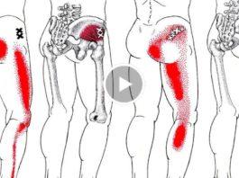 Избавься от боли в спине и ишиаса быстро! Применяй это средство и 2 упражнения и боль исчезнет навсегда!