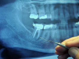 Перед заболеванием 97% больных раком делали эту стоматологическую процедуру