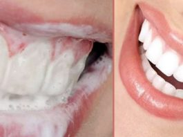 Как избавиться от зубного камня и осветлить пожелтевшую эмаль