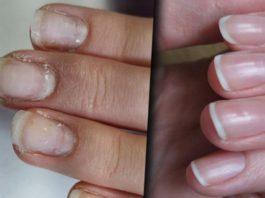 5 средств восстановить ногти после гель лака