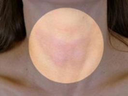 Вот как быстро и эффективно избавиться от проблем со щитовидной железой
