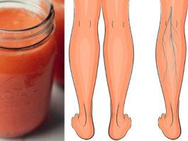 Эти три супер сока эффективно улучшают кровообращение в ногах, укрепляют вены и устраняют отёки!