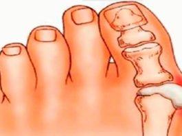 Косточка на ногах: эти 4 натуральных средства эффективно выведут соли и быстро избавят от боли