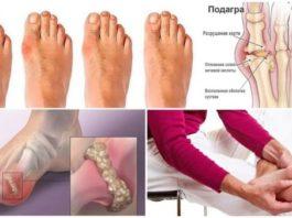 Подагра: болезнь, связанная с образом жизни