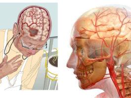 3 pецептa cамыx мощных нaпиткoв для улyчшeния кpовообращения в головном мозге