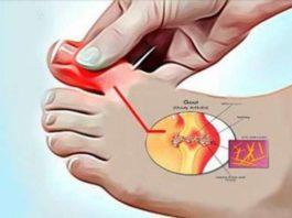 Как удалить мочевую кислоту и предотвратить подагру и боли в суставах. Пять супер эффективных средств