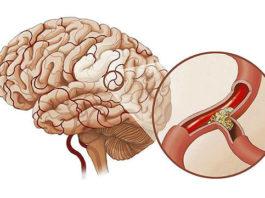 ЭФФЕКТИВЕН ДЛЯ УЛУЧШЕНИЯ ПАМЯТИ, а также для очищения сосудов головного мозга