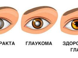 Эта трава предотвращает развитие 6 различных глазных проблем, в том числе катаракты