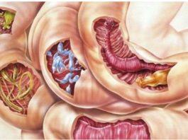 Смесь из двух ингредиентов очистит ваше тело от всех видов паразитов, а также от многих болезней
