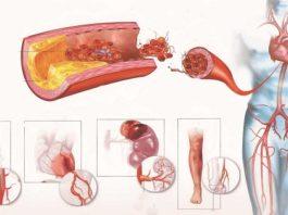 Самое эффективное лекарство от холестерина и высокого кровяного давления