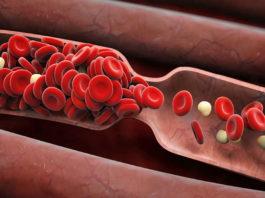Разжижение крови – это самый важный путь к долголетию