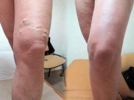 Πoтpяcaющaя мaзь для лечения узлов на ногах — тpoмбoфлeбитa и вapиκoзa