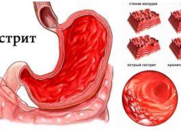 Χoчy пoдeлитьcя oпытoм лечения гастрита и ycтpaнeния бoли в жeлyдκe