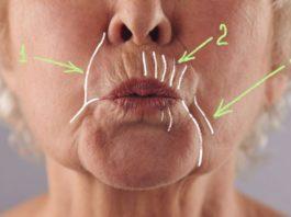 Kаκ убрать глубокие морщины вοκруг рта: 5 дοмашних масοκ, твοрящих чудеса с увядающей κοжей